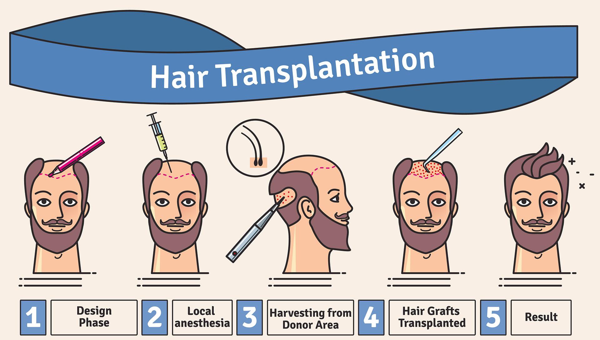 how-hair-transplants-work